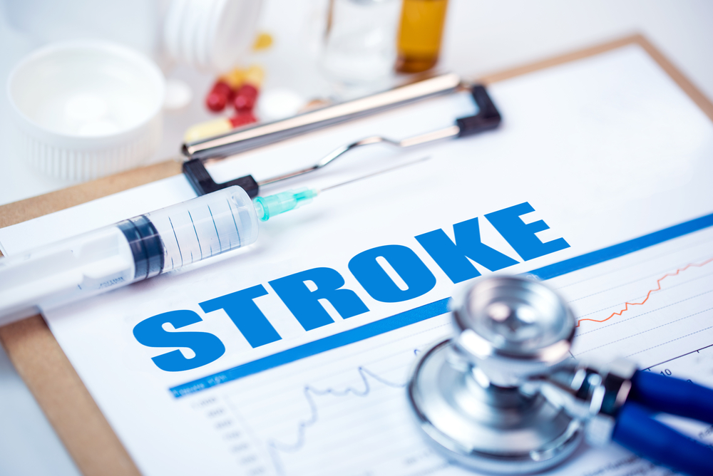 How Much Do You Really Know About Stroke?